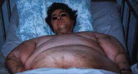 are there pictures of people with conns syndrome and cushings syndrome ...